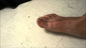 your toes relieving toe pain