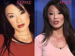 Sharon-Tay-Plastic-Surgery | Plastic surgery, Surgery, Human