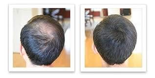 color black caboki hair loss concealer