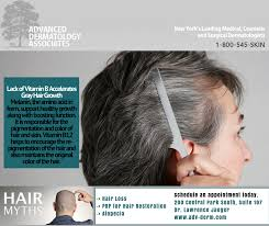 hair loss specialists bronx archives