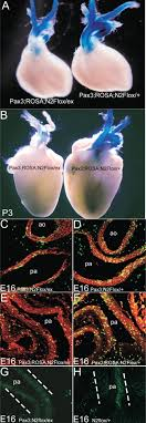 Notch2 is required for the proliferation of cardiac neural crest‐derived  smooth muscle cells - Varadkar - 2008 - Developmental Dynamics - Wiley  Online Library