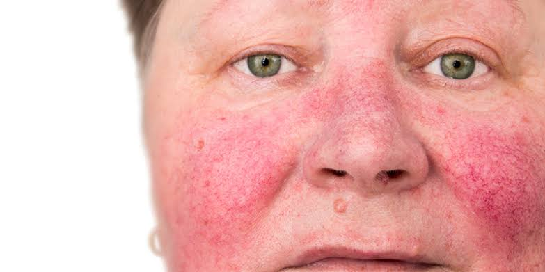 """Image result for How To Treat With Rosacea Cure"""""""