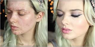5 best face makeup for acne e skin