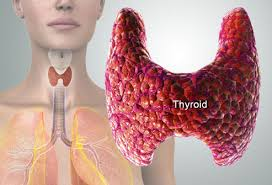 thyroid symptoms pictures fatigue