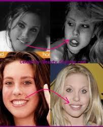 Chloe Rose Lattanzi: La Nariz y los labios - La Cirugia Estética y ...