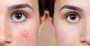 how to care for rosacea e skin