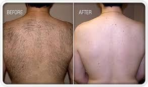 laser hair removal for men houston