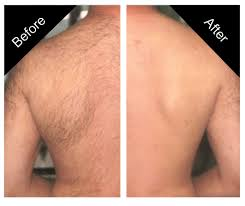 laser hair removal charmed spa