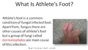 what is athlete s foot 2yamaha