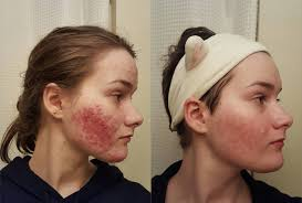 redditors cleared their acne