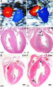 The protein phosphatase 2A B56γ regulatory subunit is required for heart  development - Varadkar - 2014 - Developmental Dynamics - Wiley Online  Library