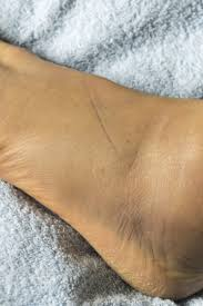 swollen feet 15 causes treatments