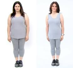 Benefits Of Attending A Weight Loss Clinic - Hello Miss Niki