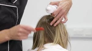 treating scalp psoriasis you