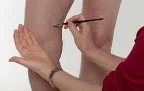 makeup for varicose veins saubhaya