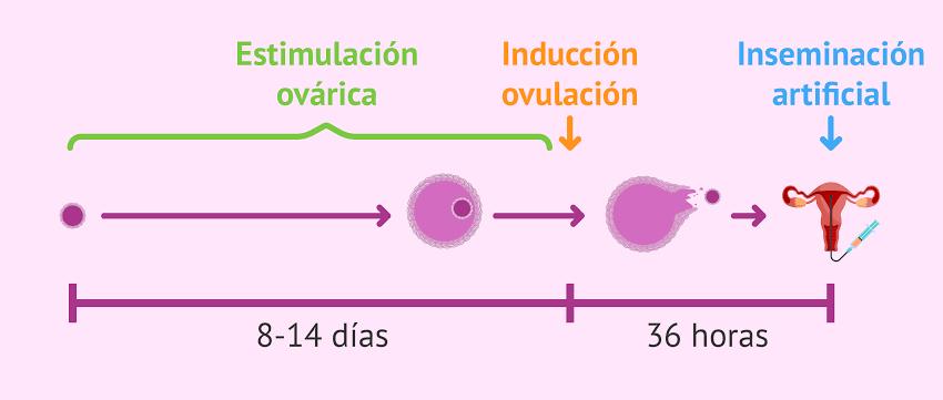 """Image result for estimulación ovárica controlada e inseminación intrauterina"""""""