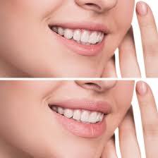 wichita falls lip augmentation