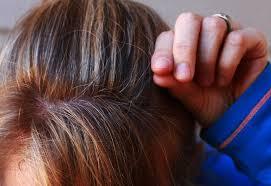 natural remes for grey hair