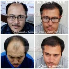 successful results with hair transplant