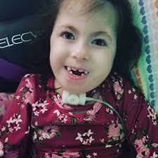 Riley Joy Allen living with Trisomy 18 - Posts | Facebook