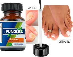 anti fungal nail treatment finger toe