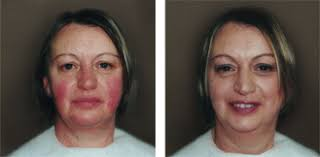 cover rosacea with airbrush makeup by