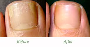 home remes for nail fungus nail