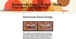 homemadedentalbridge 1 plaint