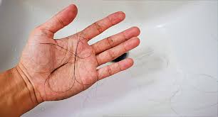 12 chemo hair loss solutions wigore