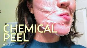 perfect derma chemical l