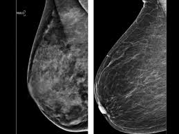 Mammogram study: Dense breasts won't raise cancer death risk in women - CBS  News