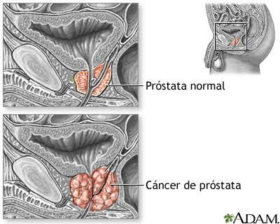 """Image result for cáncer de próstata"""""""