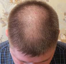 Image result for bald spots