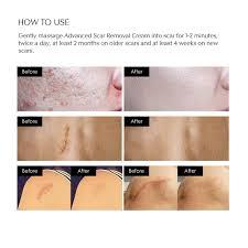 puriderma scar removal cream advanced