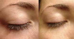 best eye makeup remover for oily skin