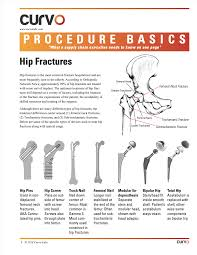 procedure basics pdf on hip fractures