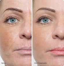 the 3d lip permanent makeup boca raton
