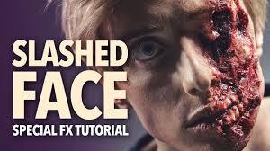 slashed face exposed bone fx