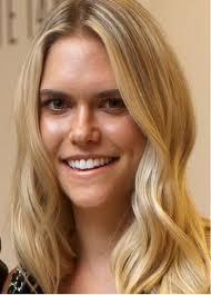 Fashion journalist Lauren Scruggs loses eye after propeller accident