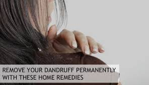 how to permanently remove dandruff with