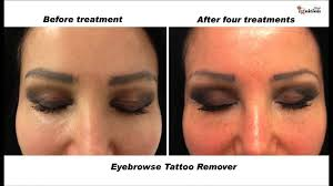 ig214 cosmetic tattoo remove you