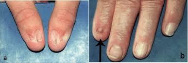 nail patella syndrome genetics home