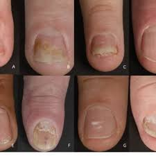 pdf nail psoriasis a review of