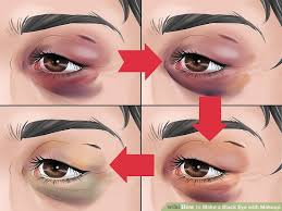 makeup look like a black eye