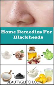 how to remove blackheads on nose