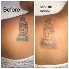 best tattoo removal near me september