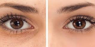 best makeup for under eye dark circles