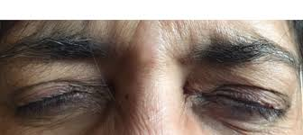blepharospasm hemi spasm botox