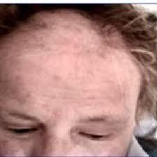severe alopecia plicating systemic
