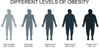 Image result for Obese
